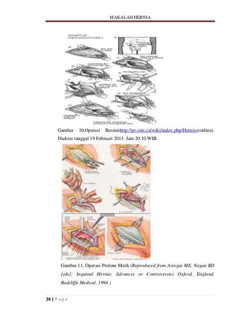 Bedah Ligamen Inguinalis Sangat penting untuk diperhatikan