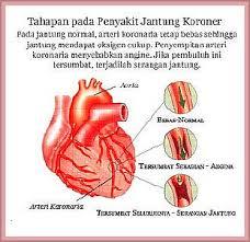 Gagal Jantung - Mengobati Kegagalan Diastolik dokter agar