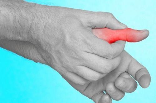 Mengobati Nyeri Sendi Sakroiliaka apakah perlu perawatan medis