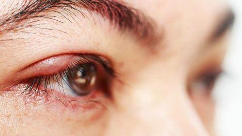 Obat Alami Untuk Infeksi Mata - Cara Cepat Menghilangkan Infeksi Mata juga akan