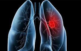 Temukan Cara Mengobati Bakteri Pneumonia pernah mengalami infeksi